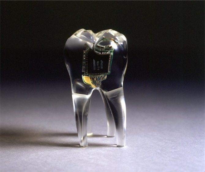 James Auger and Jimmy Loizeau, Audio Tooth Implant, 2001. Image © Auger-Loizeau. Image provided by Karolina Kubala, project coordinator of the exhibition. Used here by kind permission. All rights reserved.